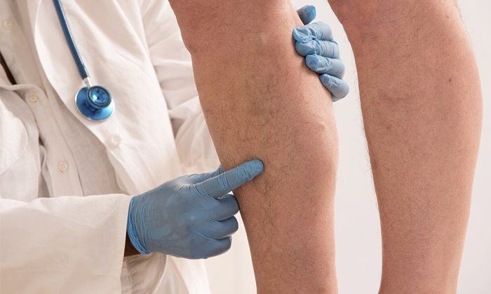 Penyakit Varises-IGnyveinclinics
